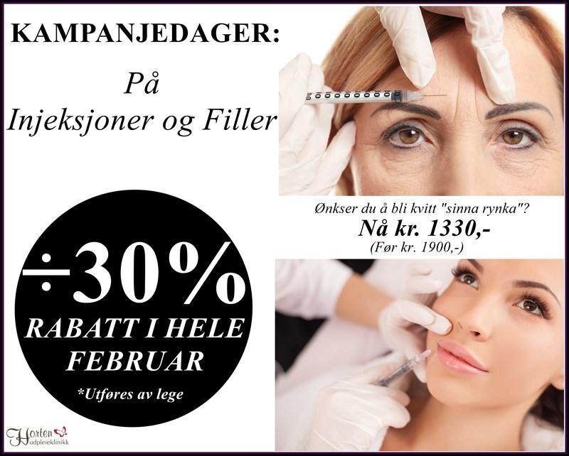 KAMPANJEDAGER I FEBRUAR PÅ INJEKSJONER OG FILLER!